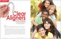 Clear Aligners for Teenagers article