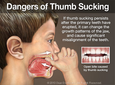 Dangers of thumb sucking