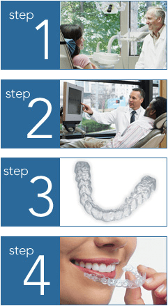Invisalign stages