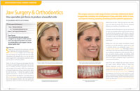 Jaw Surgery and Orthodontics article