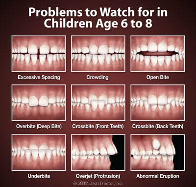 Problems to watch for in children ages 6 to 8