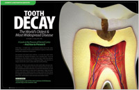 Tooth Decay - A Preventable Disease article